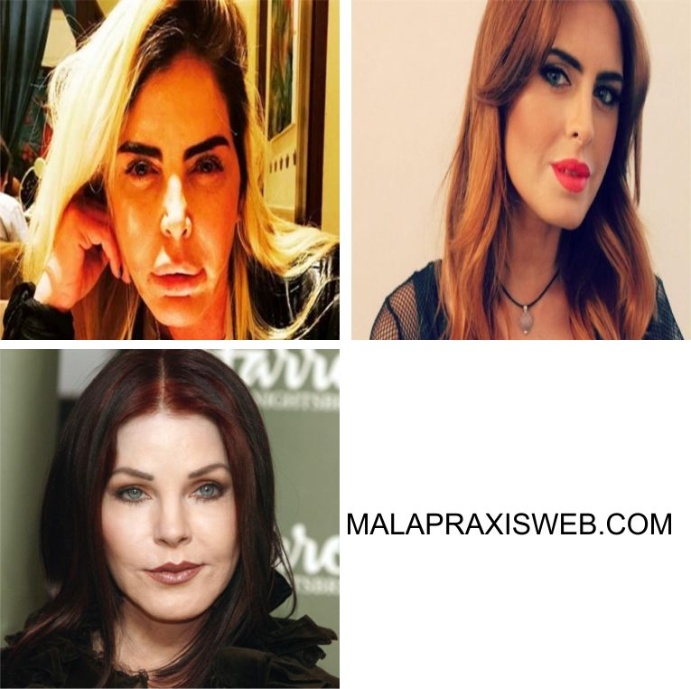 Famosas Malapraxisweb.com